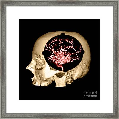 3d Image Of Skull And Brain Avm Framed Print by Medical Body Scans