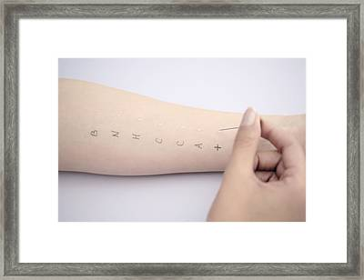 Allergy Test Framed Print by Gavin Kingcome