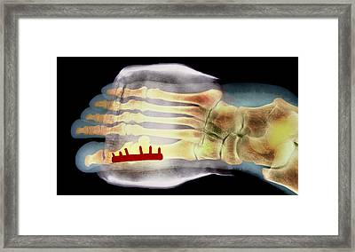 Big Toe After Bunion Surgery, X-ray Framed Print by