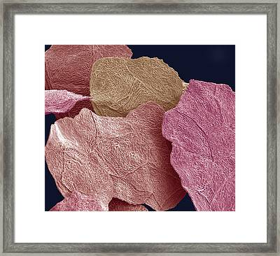 Bird Squamous Skin Cells, Sem Framed Print by Steve Gschmeissner