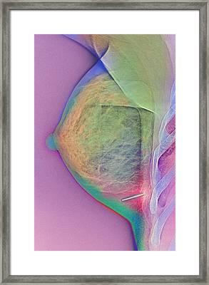 Breast Injury, X-ray Framed Print