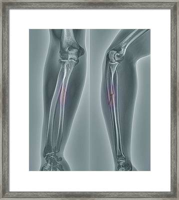 Broken Arm, X-ray Framed Print by Zephyr