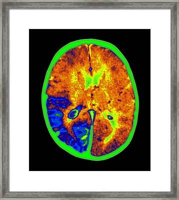 Coloured Mri Brain Scan Of Sturge-weber Syndrome Framed Print