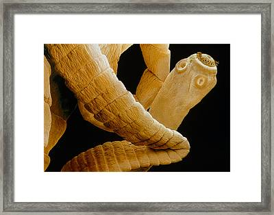 Coloured Sem Of A Tapeworm, Taenia Sp. Framed Print by Power And Syred