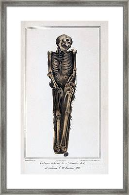 Decomposition On Exhumed Bodies, 1831 Framed Print by Science Source
