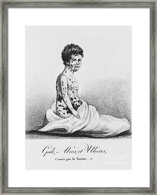 Development Of Smallpox Framed Print by Science Source