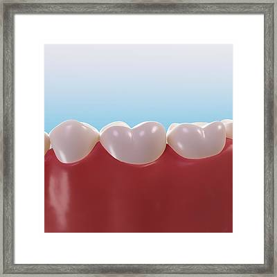 Healthy Teeth, Artwork Framed Print by Sciepro