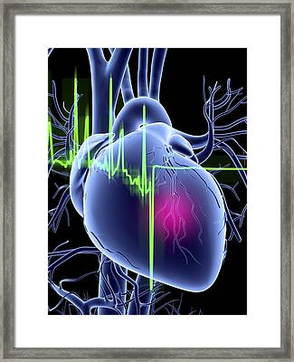 Heart Attack And Ecg Trace Framed Print