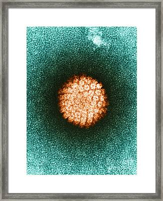 Human Papilloma Virus Hpv Framed Print by Science Source