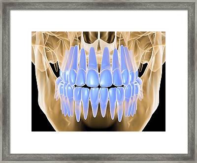 Human Skull With Teeth, Computer Artwork Framed Print