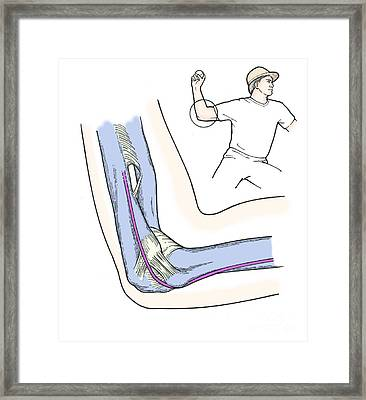 Illustration Of Elbow Ligaments Framed Print by Science Source