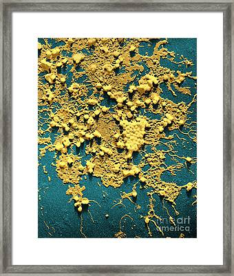 Influenza B Framed Print by Omikron