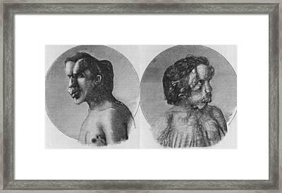 Joseph Merrick 1862-1890, Known Framed Print