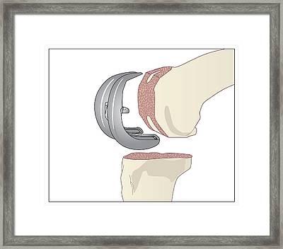 Knee Replacement, Artwork Framed Print
