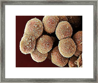 Liver Cells, Sem Framed Print