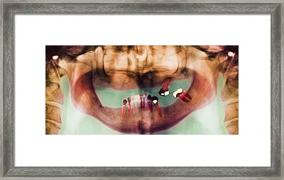 Loss Of Teeth, X-ray Framed Print by