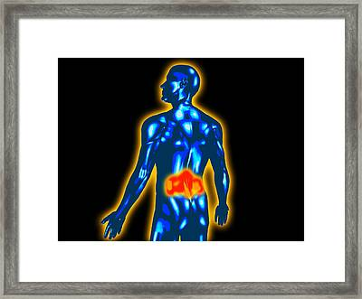 Lower Back Pain Framed Print by Christian Darkin