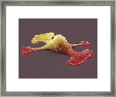 Metastasis Of A Cancerous Cell, Sem Framed Print