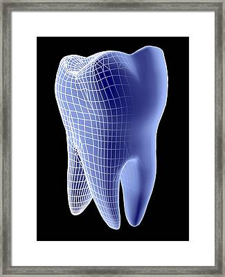 Molar Tooth Framed Print by Pasieka