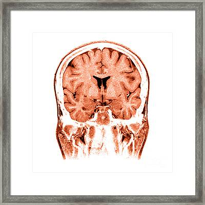 Normal Coronal Mri Of The Brain Framed Print by Medical Body Scans