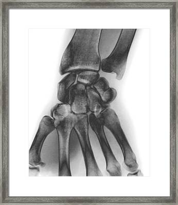 Normal Wrist, X-ray Framed Print by Zephyr