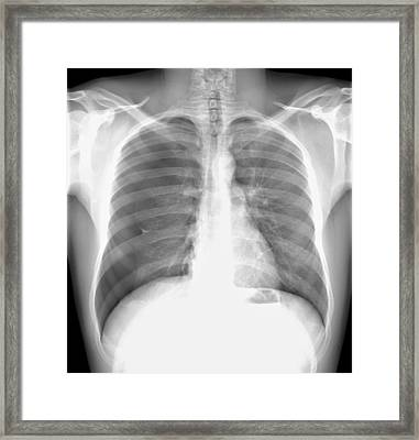 Pneumothorax, X-ray Framed Print by Du Cane Medical Imaging Ltd