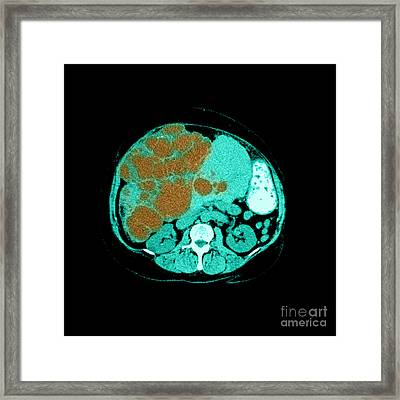 Polycystic Liver Disease On Ct Framed Print
