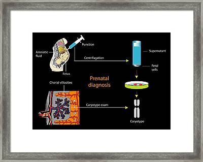 Prenatal Screening, Artwork Framed Print by Francis Leroy, Biocosmos