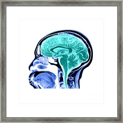 Sagittal View Of An Mri Of The Brain Framed Print by Medical Body Scans