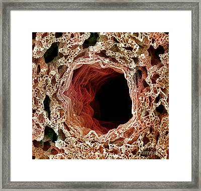 Sem Of Lung Framed Print by Science Source