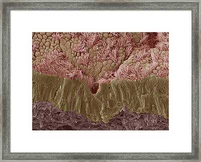 Trachea Mucous Membrane, Sem Framed Print by Steve Gschmeissner