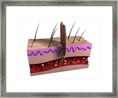 Wound Infection, Artwork Framed Print by Sciepro