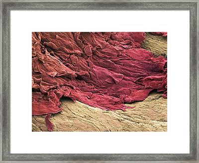 Wound Scab, Sem Framed Print by Steve Gschmeissner
