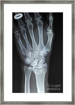 X-ray Imagery Of A Hand With Wedding Ring Framed Print by Sami Sarkis
