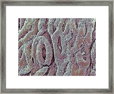 Ulcerative Colitis, Sem Framed Print by Steve Gschmeissner
