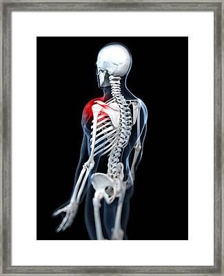 Shoulder Pain, Conceptual Artwork Framed Print by Sciepro