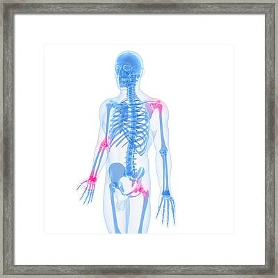 Joint Pain, Conceptual Artwork Framed Print by Sciepro