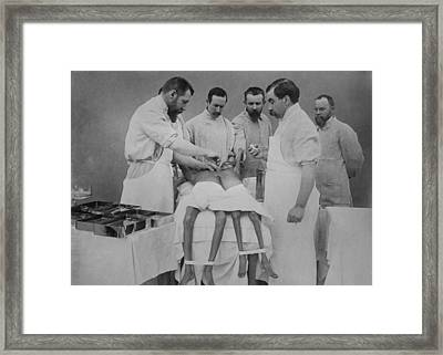 1912 Operation Separating Young Indian Framed Print by Everett