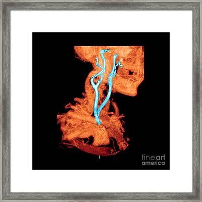 3d Cta Of Carotid Arteries Framed Print