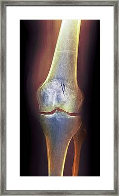 Arthritic Knee, X-ray Framed Print by Du Cane Medical Imaging Ltd