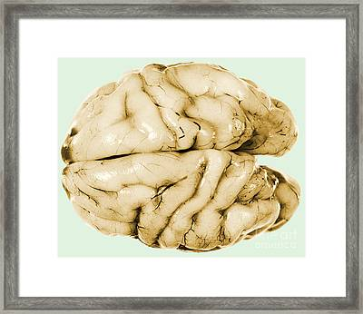 Brain Framed Print by Science Source