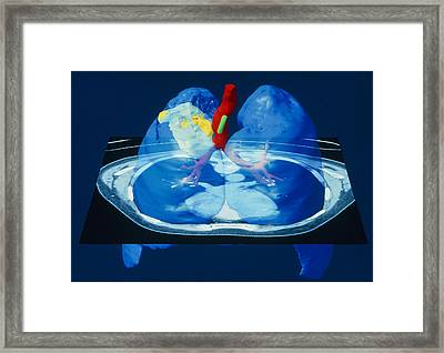 Coloured Computed Tomography Scan Of Lung Cancer Framed Print by Volker Stegersiemens