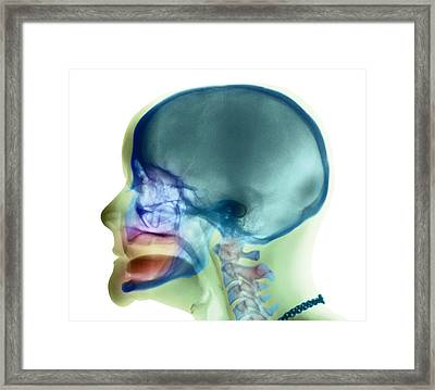 Complete Loss Of Teeth, X-ray Framed Print by
