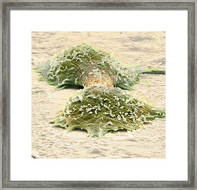 Dividing Cancer Cells, Sem Framed Print by Steve Gschmeissner