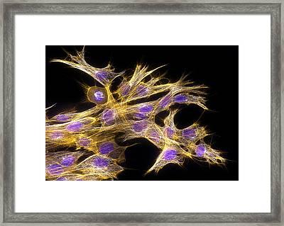 Fibroblast Cells, Fluorescent Micrograph Framed Print by Dr Torsten Wittmann