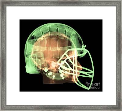 Football Helmet, X-ray Framed Print by Ted Kinsman