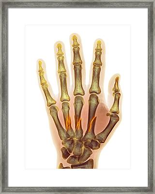 Fractured Palm Bones Of Hand, X-ray Framed Print by