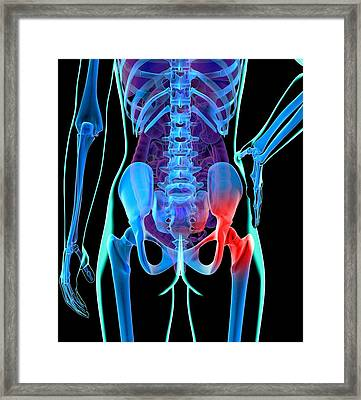 Hip Pain, Conceptual Artwork Framed Print by Roger Harris