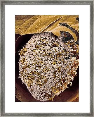 Nitrogen-fixing Bacteria, Sem Framed Print by Steve Gschmeissner