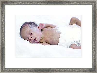 Premature Baby Framed Print by